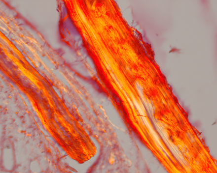 Opercular bone, stained with picrosirius red and with polarised light (striation pattern indicates collagen fiber orientation)